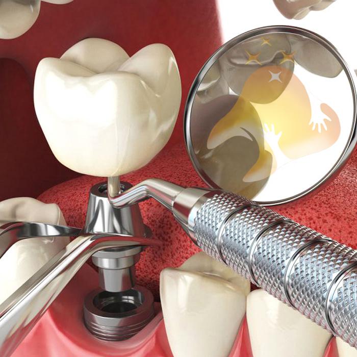 کاشت ایمپلنت دندان پروآرچ بدون نیاز به پیوند استخوان