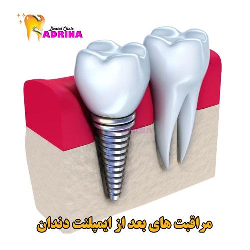 مراقبت های بعد از ایمپلنت دندان