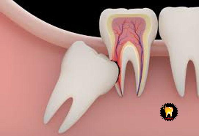 ایمپلنت دندان و سوالات متدوال جراحی