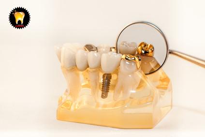 همه چیز درباره ی کاشت ایمپلنت دندان